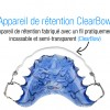 blue_clearbow_retainer_intro_french