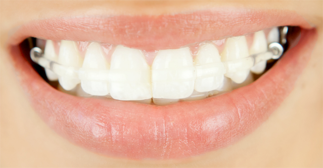 closeup_smile_clearbow_retainer_96