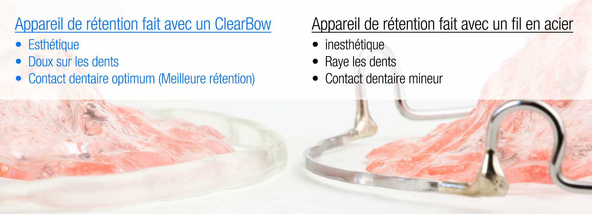comparing_steel_and_clearbow_retainer_french_1