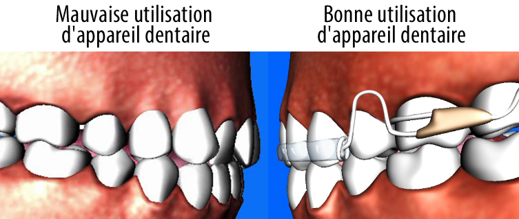 bad_retainer_wear_french
