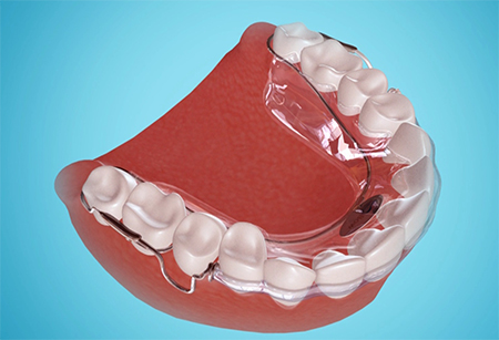 hygienic_clearbow_plastic_retainer_web